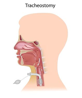 what_you_should_know_about_Tracheostomy_care