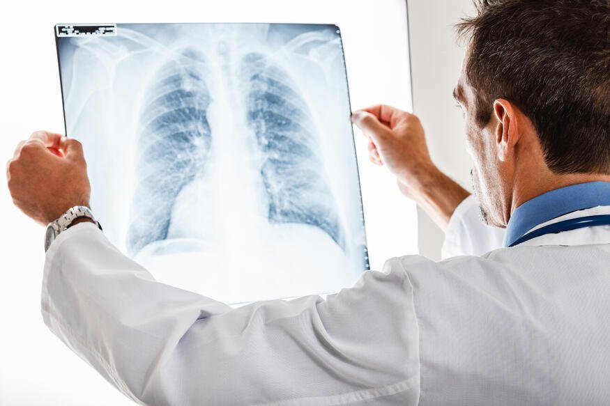 pulmonary rehab therapy