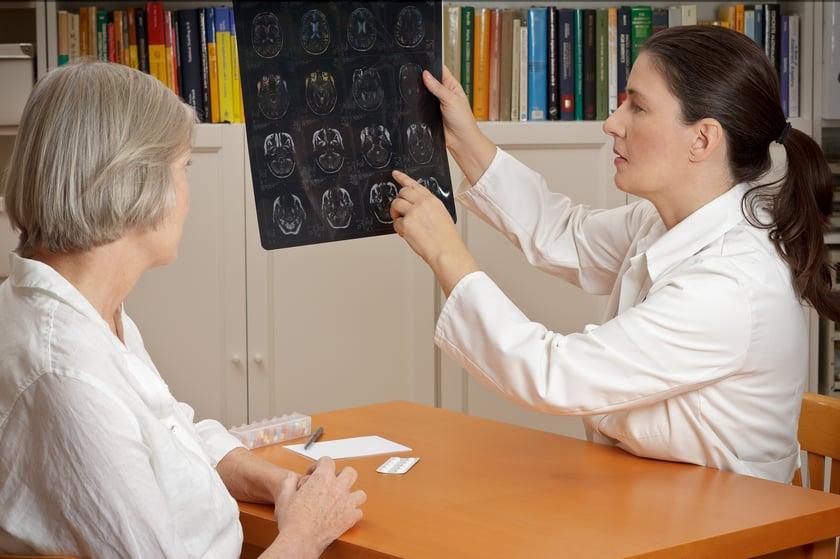 stroke side effects