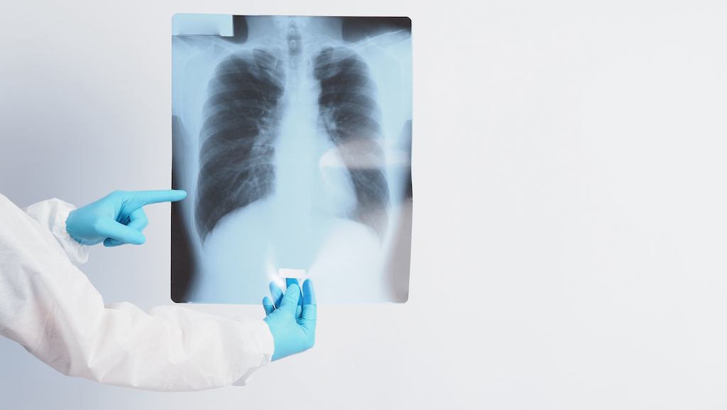 5 Ways Physical Therapy Addresses COVID-19 Lung Damage